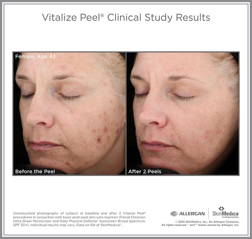Acne Skin Peel