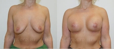 breastlift-aug