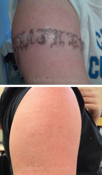 laser-tattoo-removal-p1