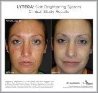 LYTERA_SBS_CS_Female_Age28_Front