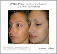 LYTERA_SBS_CS_Female_Age28_Left