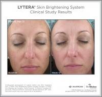 LYTERA_SBS_CS_Female_Age35_Option1