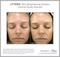 LYTERA_SBS_CS_Female_Age36_Front