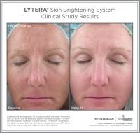 LYTERA_SBS_CS_Female_Age42_Front
