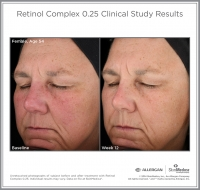 Retinol_025_CS_Female_Age54