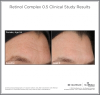 Retinol_05_CS_Female_Age54